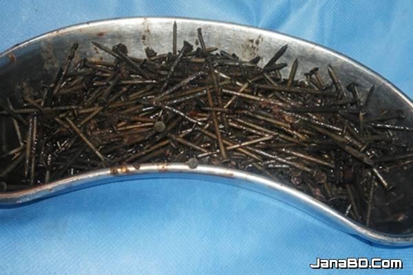 যুবকের পেট থেকে বের করা হল ৬৩৯ টি লোহার পেরেক